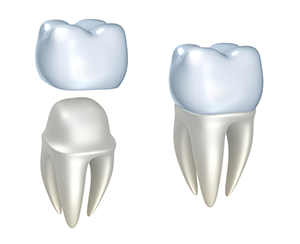 Permanent Dental Crowns in Oakville, MO